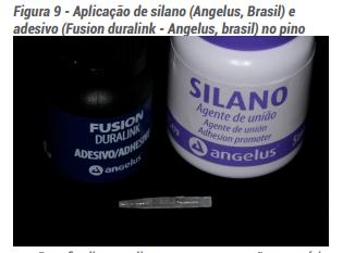 Figura 9 - Aplicação de silano (Angelus, Brasil) e adesivo (Fusion duralink - Angelus, Brasil) no pino