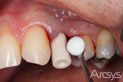implante imediato com arcsys
