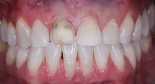 Aspecto após preparo dos dentes