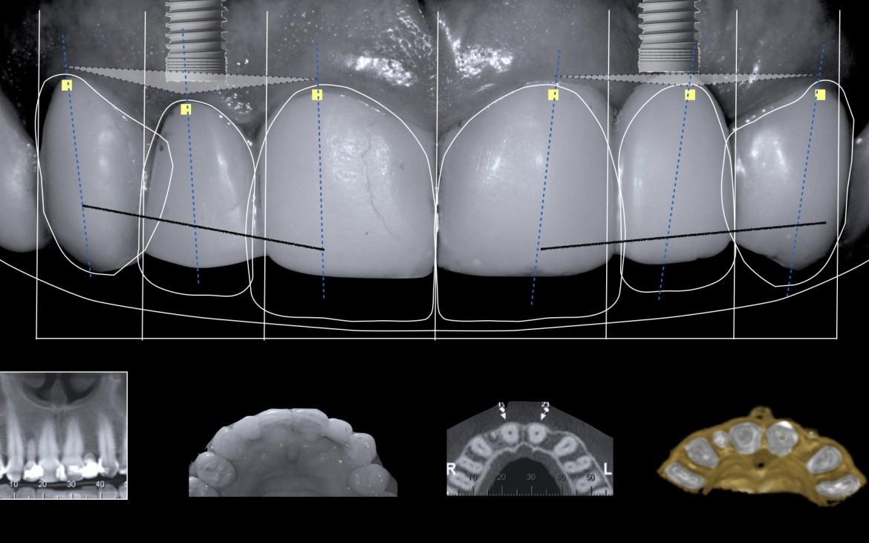 Os resultados do estudo da Tomografia Computadorizada Cone Bean do rebordo na maxila revelou alturas e larguras ósseas adequadas para instalação de implantes de forma simples e previsível