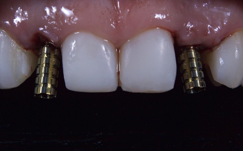 Cilindros provisórios posicionados sobre os implantes
