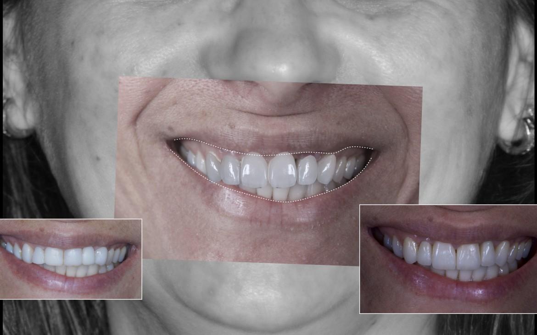 Sorriso em vista frontal pré operatório, planejamento digital e pós operatório