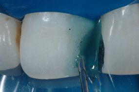 Condicionamento da cavidade com ácido fosfórico 37% por 15 segundos em dentina e 30 segundos em esmalte.