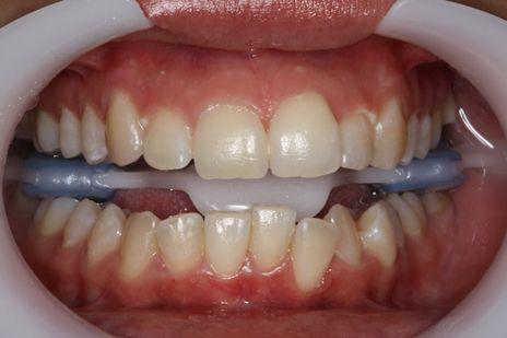 Primeira camada da restauração realizada com uma resina acromática Opallis T-Neutral (FGM) adaptada na matriz palatina, na região correspondente a área a ser restaurada.