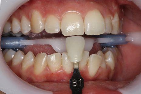 Adapta-se a matriz palatina no dente com a resina ainda não polimerizada. Verifica-se o correto assentamento da matriz e fotopolimeriza-se na seqüência.