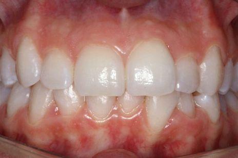 Após a fotopolimerização final deve-se aplicar um gel isolante Oxiblock (FGM) para evitar o contato da última camada da restauração com o oxigênio e possibilitar uma polimerização mais efetiva.