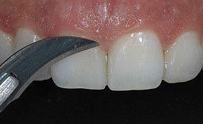 Remoção dos excessos cervicais com uma lâmina de bisturi n.12, logo após o término da restauração.