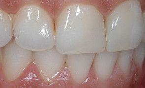Vista lateral do caso finalizado. Notar a recuperação da estética, saúde e função após o tratamento restaurador.