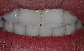 Resultado final do sorriso do paciente obtido com Opallis
