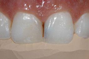 Após pequeno acréscimo de resina para correção da região fraturada do dente 11, pode-se aproveitar o formato da região palatina como um guia para a confecção da nova restauração do dente 11.