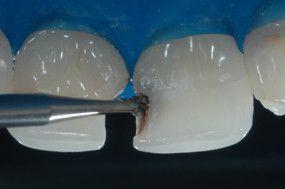 Remoção do tecido cariado comum a broca carbide em baixa rotação.