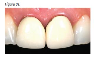 Caso inicial: as coroas metalocerâmicas que serão removidas por fatores estéticos.