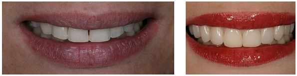 Paciente reclamava de dentes curtos