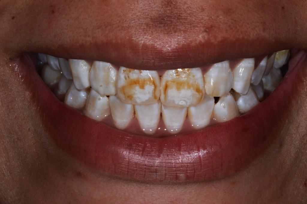 Paciente do sexo feminino, 20 anos (Figura 1), procurava tratamento para manchamento branco, amarelado e marrom sobre a superfície vestibular dos seus dentes