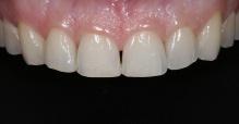 Imagem intra-bucal aproximada, evidenciando o desgaste dentário de todos os dentes e o espaço negro existente entre os incisivos centrais.