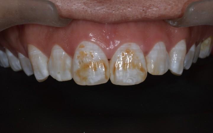 A paciente foi examinada e após anamnese e exame clínico com os esmalte seco, foi diagnosticada com fluorose de grau 5 pelo índice TF