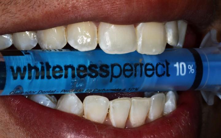 A paciente recebeu uma nova seringa de gel Whiteness Perfect 10 (peróxido de carbamida 10%) para continuar o clareamento dentário