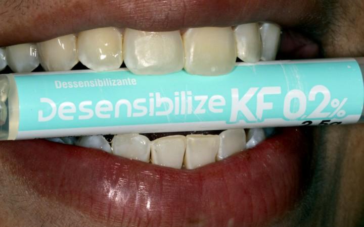 eringa de Dessensibilize KF 0,2%, gel dessensibilizante que não interfere no clareamento e diminui a sensibilidade decorrente dele