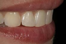 Visualização lateral do caso demonstrando a ausência de volume vestibular e o desgaste dentário das incisais dos dentes.