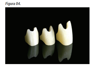 O REFORCORE mais adequado ao preparo é selecionado. O material é apresentado em um kit com 3 tamanhos para dentes anteriores e 3 tamanhos para pré-molares.