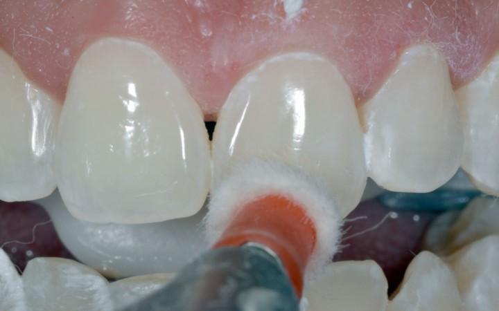 polimento com auxílio dos discos de Feltros Diamond e discos finos Diamond Flex umedecidos em água com pasta diamantada Diamond Excell
