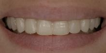 Sorriso da paciente com a prova do enceramento (Mock-up) feito com resina bisacril (Systemp.c&b II – Ivoclar Vivadent).