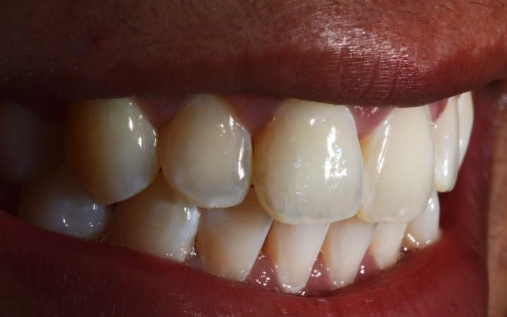 Sorriso da paciente após a conclusão dos procedimentos