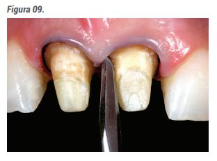 Após a polimerização completa do cimento, é realizado o repreparo da estrutura coronária.