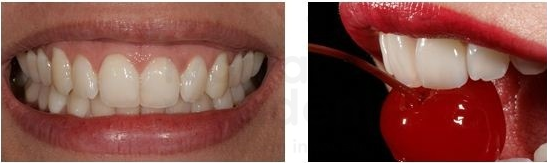 restauração de incisivo central unitário com faceta do tipo lente de contato