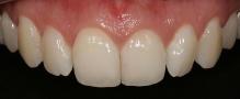 Imagem intra-bucal aproximada, evidenciando a diferença de volume entre os incisivos.