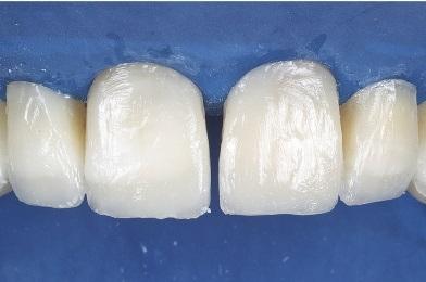 Aplicação de resina Opallis EA2 na região cervical.