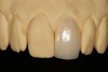 Restauração do incisivo central unitário com faceta do tipo lente de contato