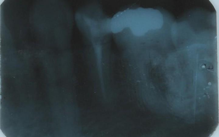 Aspecto Radiográfico