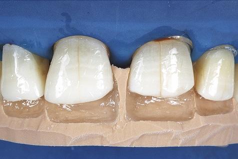 Superfície dental após a aplicação do adesivo de dois passos.