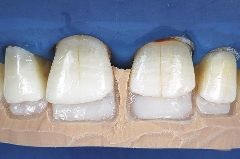 Confecção da parede palatina com resina Opallis T-Neutral.