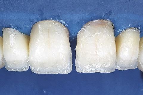 Aplicação de resina Opallis DA3,5 na região cervical.