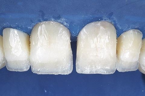 Aplicação de resina Opallis T-Blue na região dos mamelos.