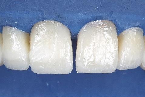 Aplicação de resina Opallis EA1 nas regiões médio e incisal.