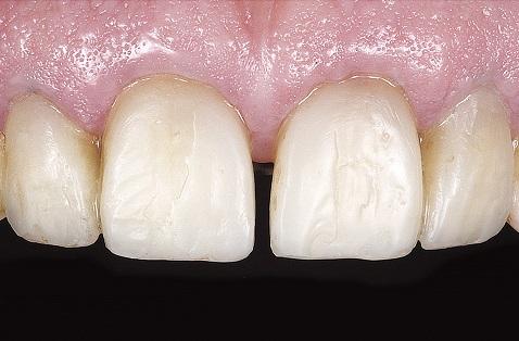 Aplicação de resina Opallis VH nas áreas de reflexão de luz proximais.