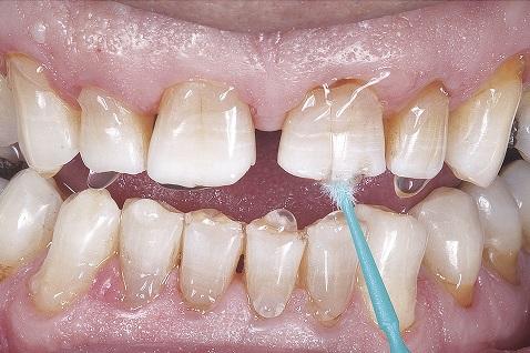 Tomada de cor prévia ao clareamento dental com as cores A1, A3 e A4