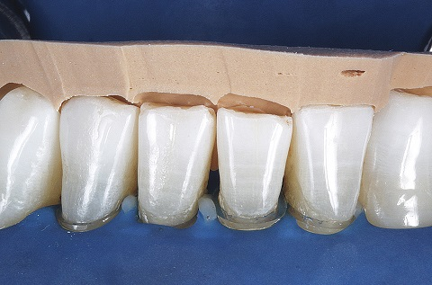 Vista frontal e lateral após o polimento das facetas diretas.