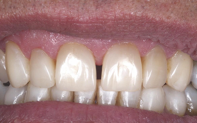 Restauração da borda incisal dos dentes anteriores inferiores.
