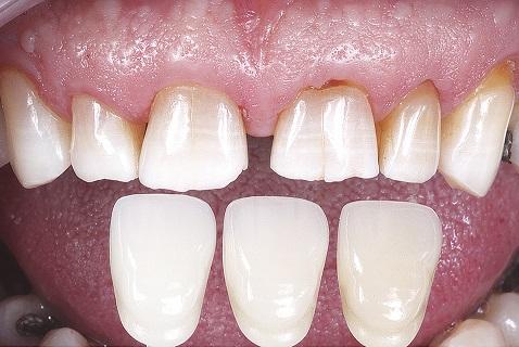 Polimento após o clareamento com o disco de feltro Diamond Flex (FGM) associado à pasta de polimento Diamond R (FGM)
