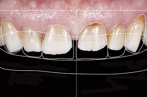 Tomada de cor após clareamento dental com as cores B1, A1 e A2 (VITA) da esquerda para direita respectivamente.