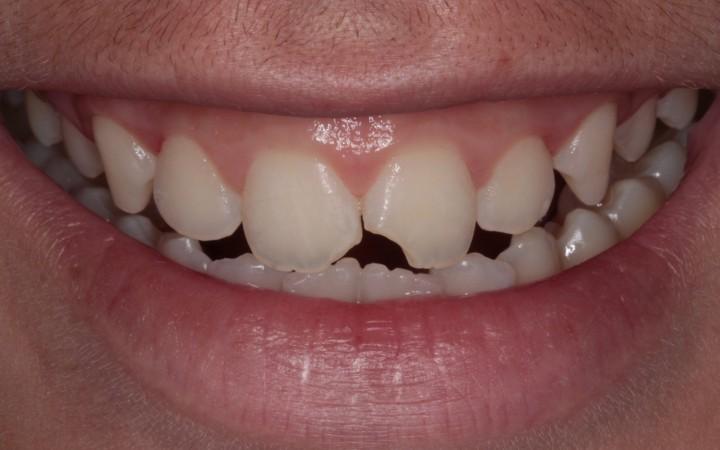 Caso clínico inicial fratura dental