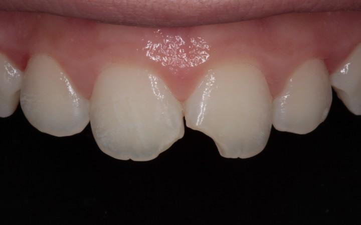 Detalhes anatômicos e de composição de core cores e efeitos dos dentes fraturados