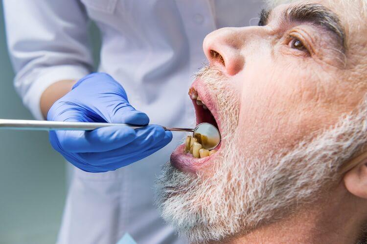 Paciente odontológico com dentes danificados pelo cigarro