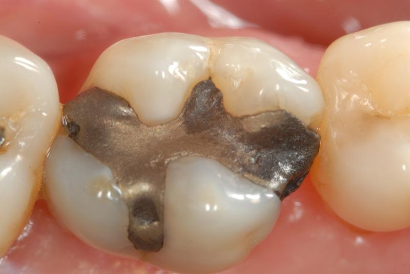 Paciente portadora de uma restauração de amálgama deficiente e fraturada, no dente 16