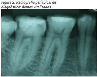 Radiografia periapical de diagnóstico: dentes vitalizados