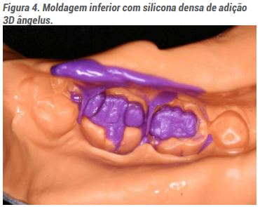 Moldagem inferior com silicona densa de adição 3D angelus